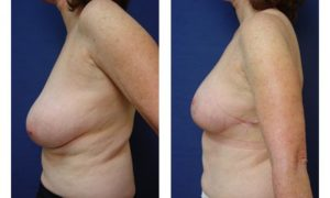 Breast Lift Plastic Surgeon Orange County
