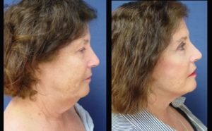 face and neck lift - right view