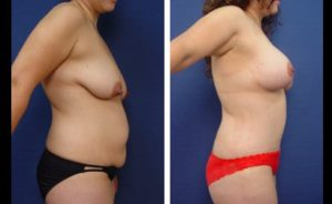 Tummy Tuck Patient Results Plastic Surgeon Orange County