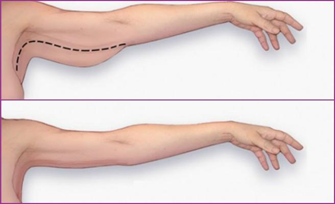 The Scarless Arm Lift, Plastic Surgery Orange County