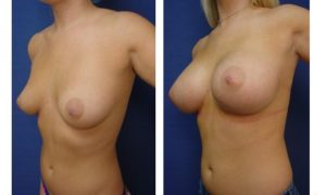 breast augmentation revision - left lateral view