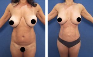 hd body contouring revision