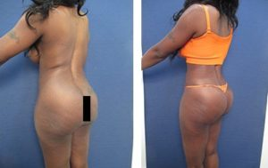 hd body contouring before after