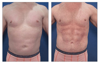 high definition liposuction for men procedure - front view