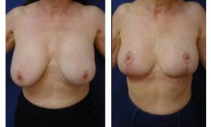 breast augmentation revision procedure - front view