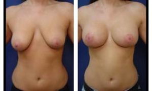 breast lift with implant augmentation - front view