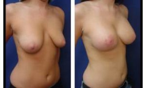breast lift with implant augmentation - right lateral view