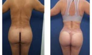 BBL with vaser hd Liposuction - back view