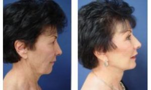 facelift surgery - right view