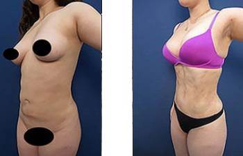 hd-liposuction-before-after-mowlavi-p11-02-400x246