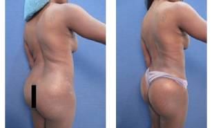 hd-liposuction-before-after-mowlavi-p12-01-2