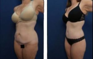 29-year-old female before and after high definition liposuction procedure - left lateral view