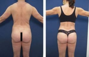 VASER hd liposuction with BBL procedure - back view