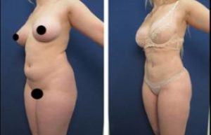 hd liposuction procedure - left lateral view