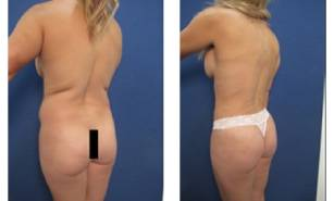 hd-liposuction-before-after-mowlavi-p32-06-2-400x246