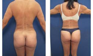 hd-liposuction-before-after-mowlavi-p35-03