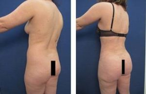abdominal etching and hd liposuction procedure – back left view