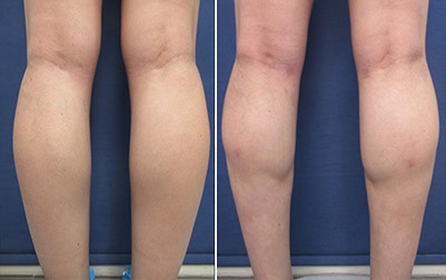 lower leg contouring before and after