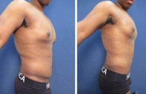hd liposuction for men - right view