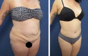 hd vaser liposuction procedure - front right view