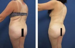 hd vaser liposuction procedure - back right view