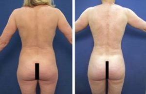 BBL with hd vaser liposuction procedure - back view