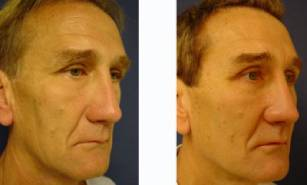 lower-blepharoplasty-patient-2002-front-right-1-400x241