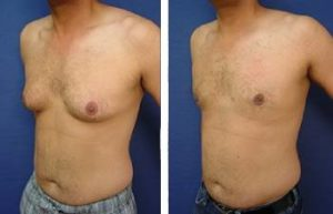 male breast surgery procedure was life changing - left lateral view