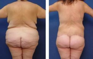 Bariatric Body Contouring Before and After