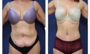 tummy tuck and liposuction surgery - front view