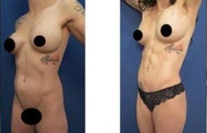 4D HD liposuction with chiseled abs - left lateral view