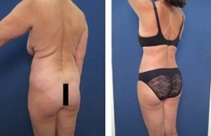 hd liposuction with BBL procedure - back left view
