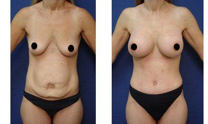tummy tuck and breast procedure - front view